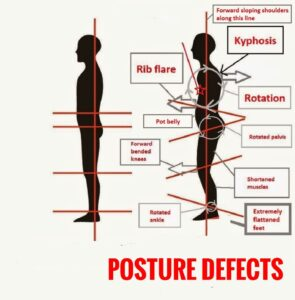 posture correction yoga poses